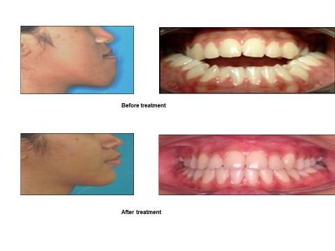 Comprehensive Orthognathic Treatment in IIUM