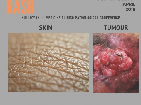 """A PRIVATE RASH"" - KOM CPC BY DEPT. OF SURGERY - 12 APRIL 2019 (8.00 A.M)"